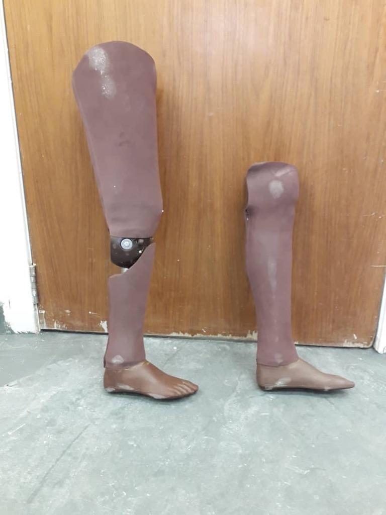 Chisomo's Prosthetics