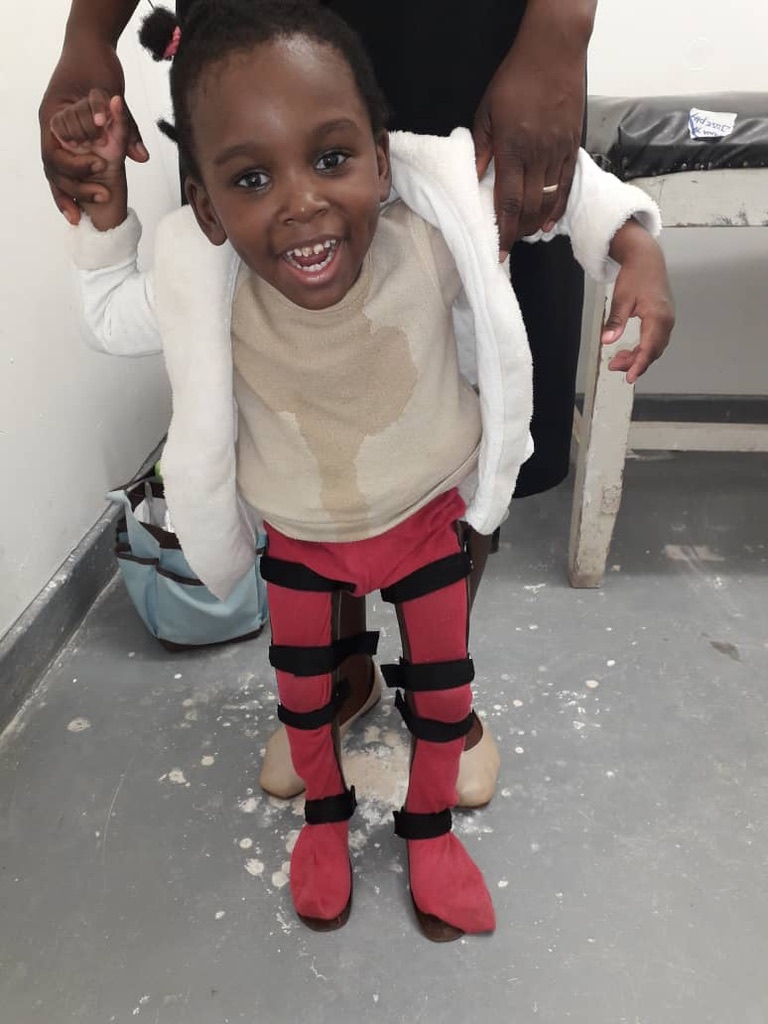 Mwayi With Her Orthoses